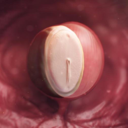 4 weeks pregnant.