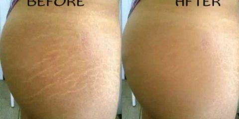 How to Get Rid Of Your Stretch Marks