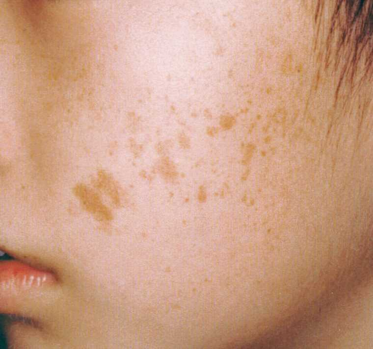 Different Kinds of Birthmarks