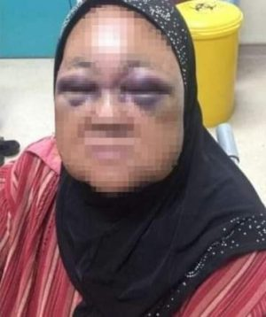 Man assaults wife's grandmother for not stopping his 8-month-old daughter from crying